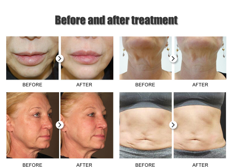 3D HIFU Therapy Face and Body Lifting
